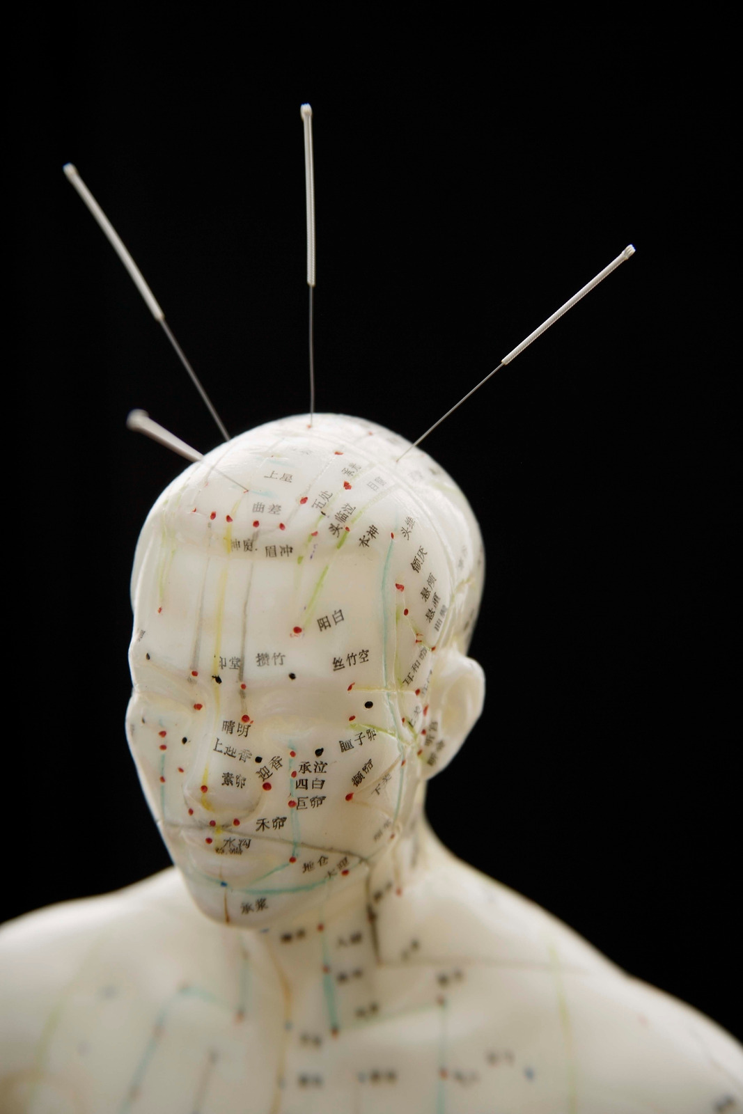 How are acupuncturists educated? - Doctorkits H-Tech